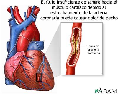 dolor de pecho que no es infarto